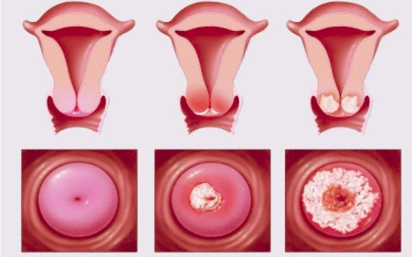 Viêm cổ tử cung: Nguyên nhân, biểu hiện và cách điều trị