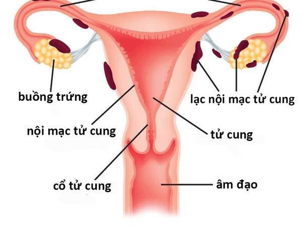 Niêm mạc tử cung dày bao nhiêu thì có thai