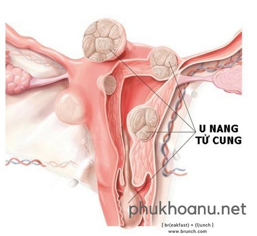 U nang tử cung là gì? Triệu chứng và cách điều trị bệnh
