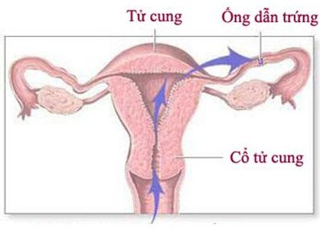 Viêm ống dẫn trứng: Dấu hiệu và cách điều trị